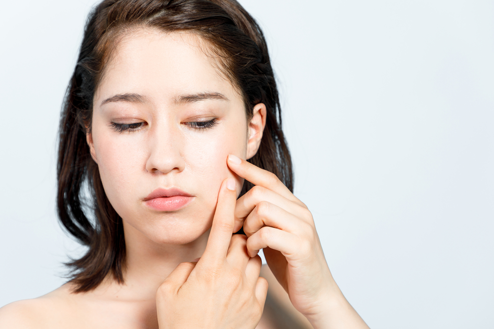 schlechte Haare schmutzigen Gewohnheiten verursachen Akne
